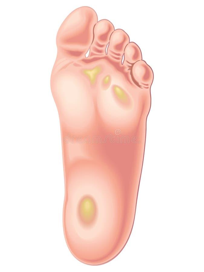 Callos del pie ilustración del vector