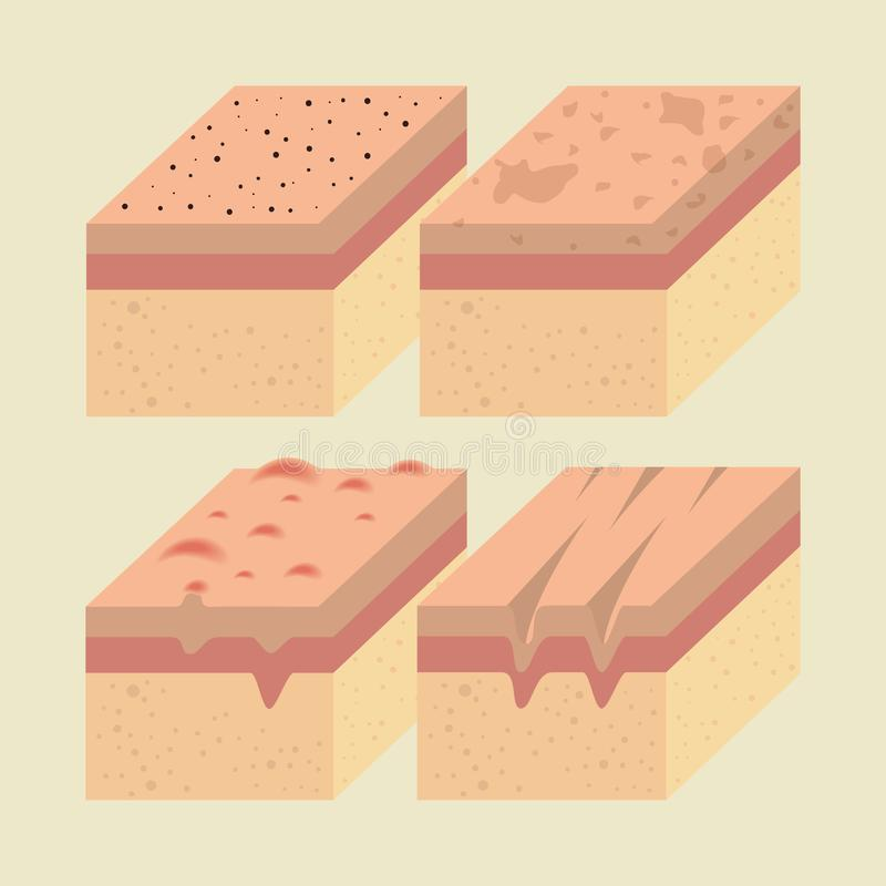 Camadas de tipos da pele ilustração royalty free