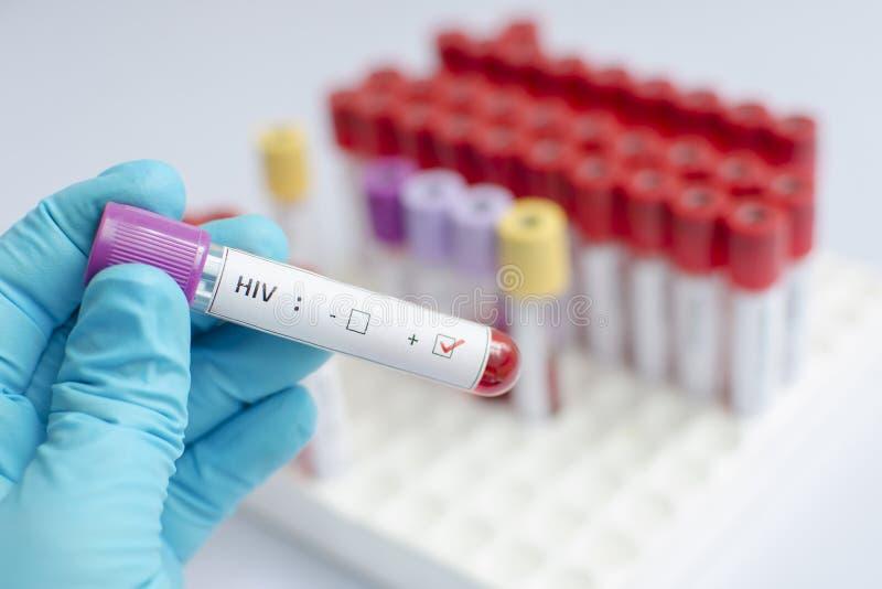 Campione di sangue di HIV fotografie stock libere da diritti