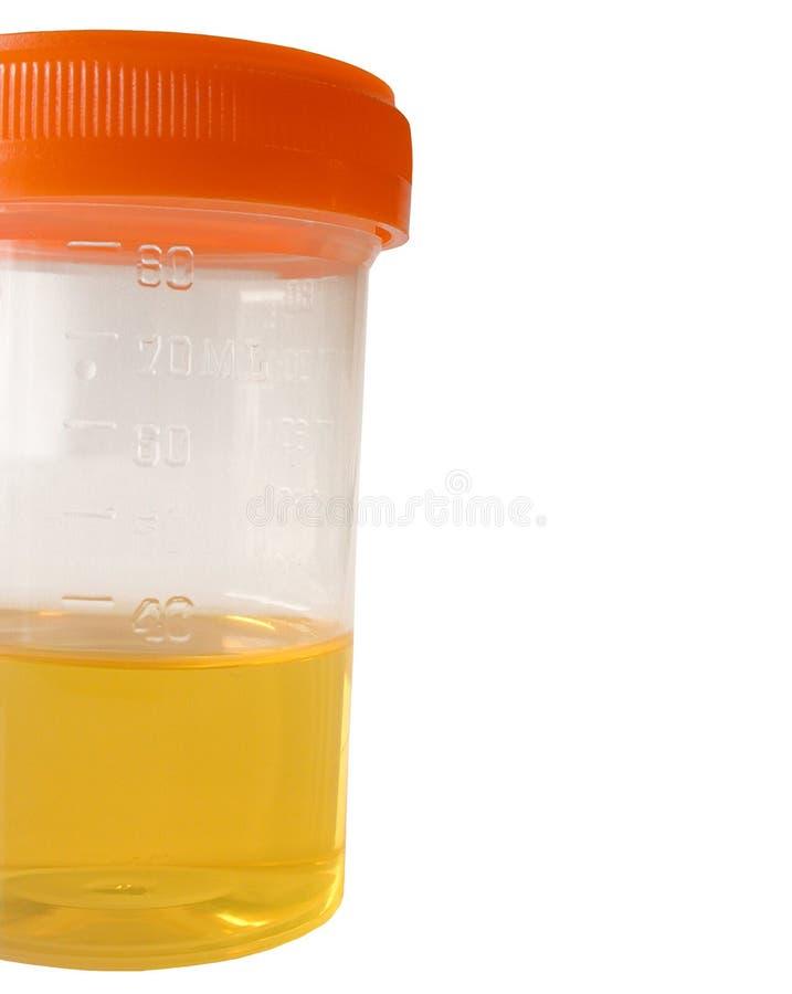 Campione di urina fotografia stock libera da diritti