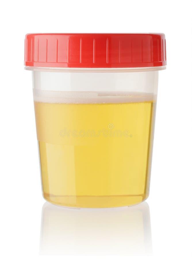 Campione di urina in contenitore isolato su bianco fotografie stock