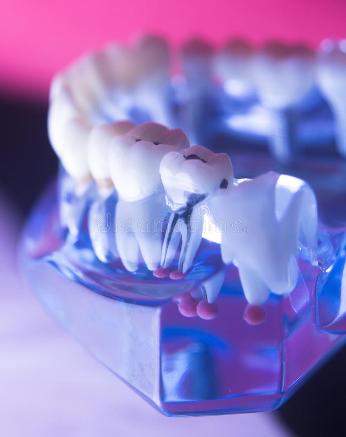 Canal de raiz dental do dente imagem de stock royalty free