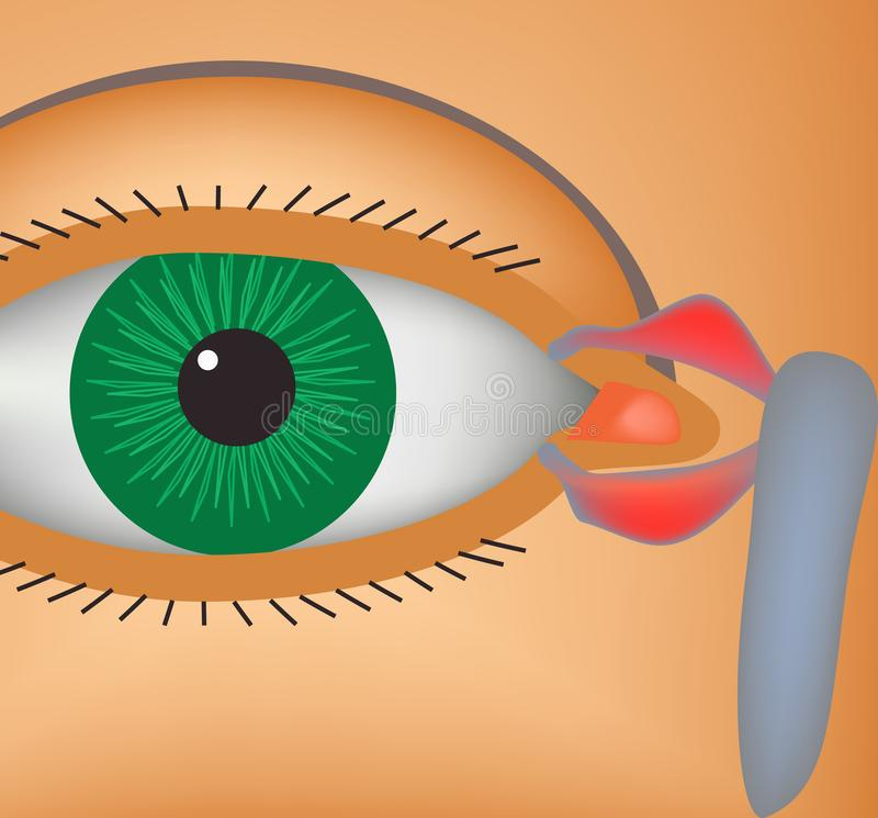 Canaliculitis. Inflammation of lacrimal canals. The structure of the eye. Infographics. Vector illustration. Canaliculitis. Inflammation of lacrimal canals. The royalty free illustration