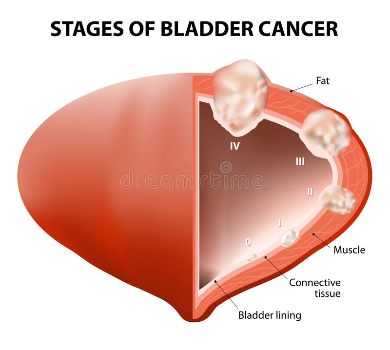 Cancer bladder vector illustration