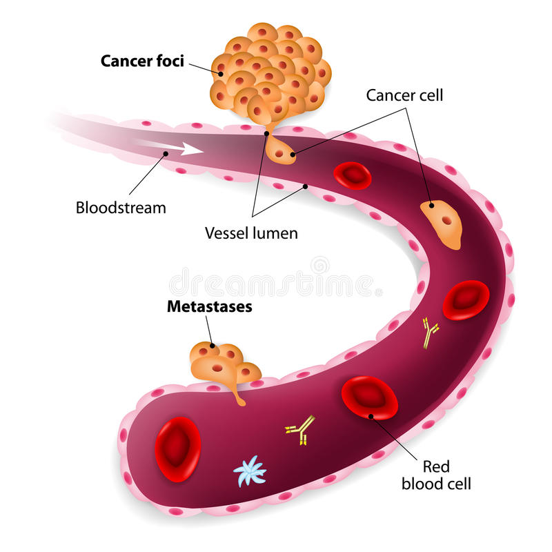 Cancer cells, cancer foci and Metastases royalty free illustration