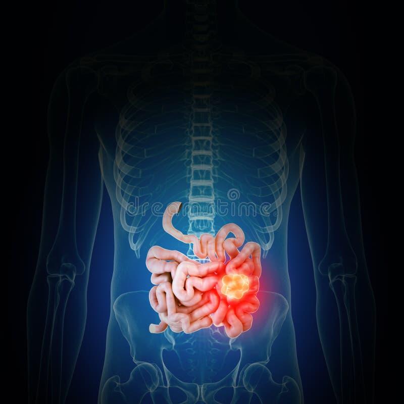 cancer d'intestin illustration stock