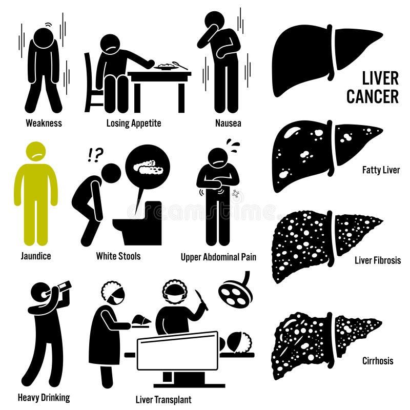 Cancer de foie Clipart illustration stock