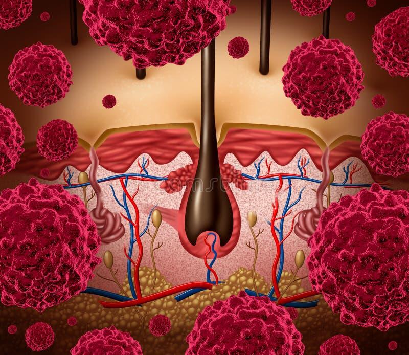 Cancer de la peau illustration stock