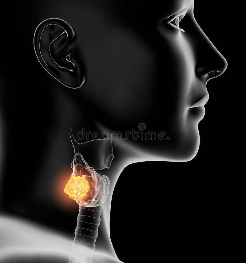 Cancer de la thyroïde d'une femme, médicalement illustration 3D sur le fond noir illustration de vecteur