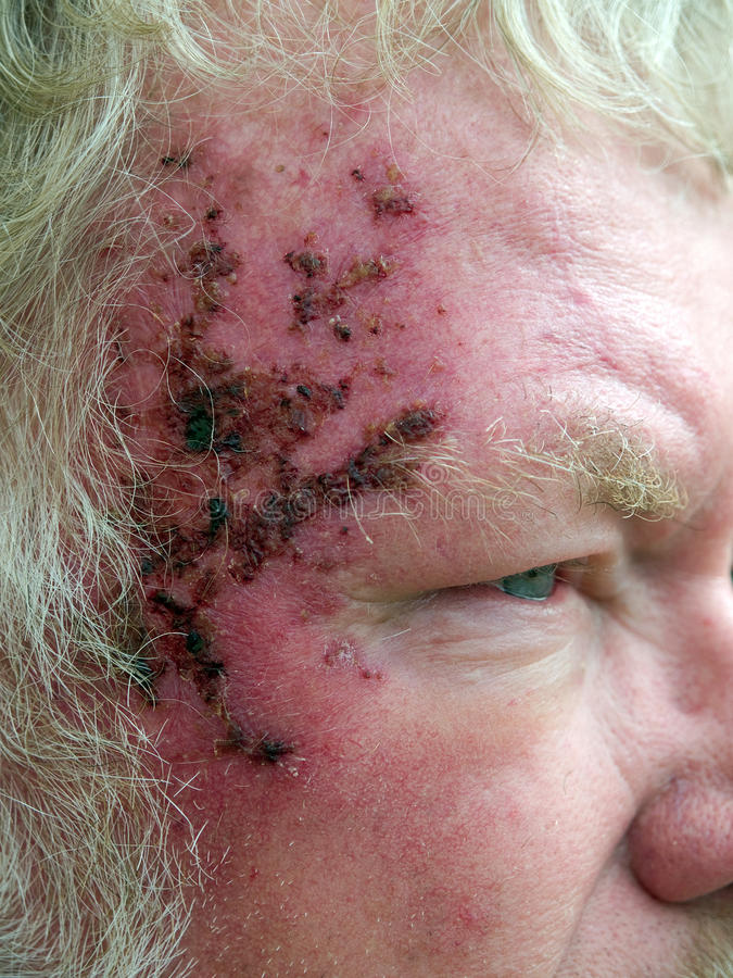 Cancer de peau image libre de droits