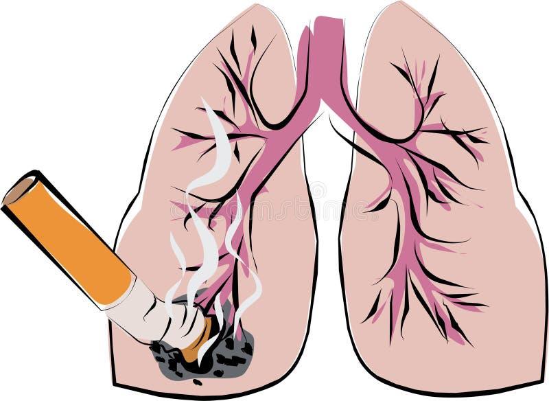 Cancer de poumon illustration stock
