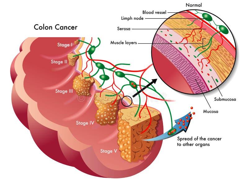 Cancer du côlon illustration stock