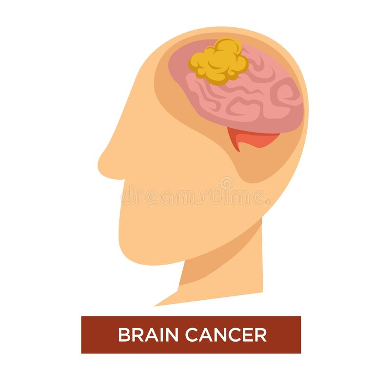 Cancer du cerveau de la maladie d'oncologie et vecteur de chimiothérapie illustration stock