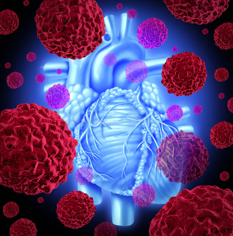 Cancer humain de coeur illustration de vecteur