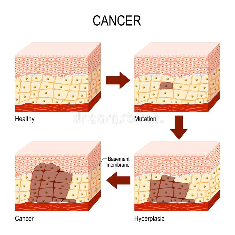 cancer. from Normal cells to Mutation, Hyperplasia, and Malignant tumor. vector illustration