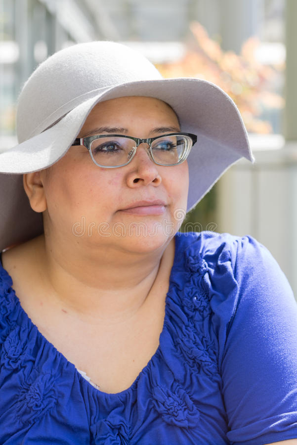 Cancer Patient Wears Hat For Sun Protection. Female woman with cancer avoids skin reactions to chemo treatment by wearing hat royalty free stock images