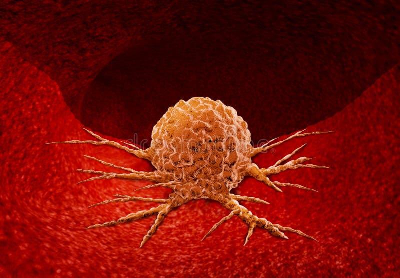 Canceranatomibegrepp vektor illustrationer