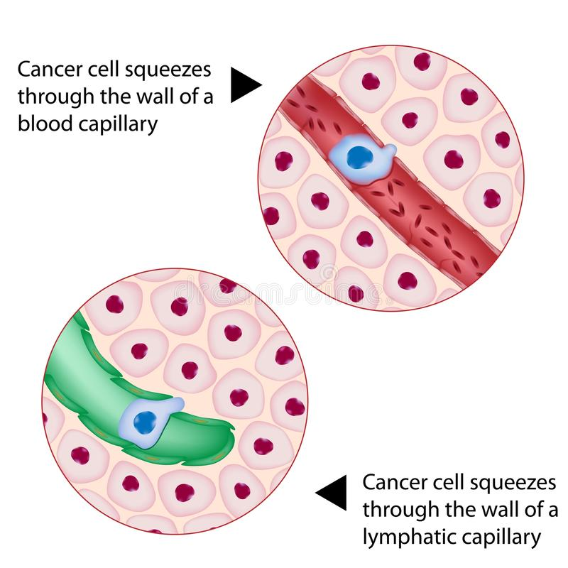 cancercellen pressar skytteln stock illustrationer