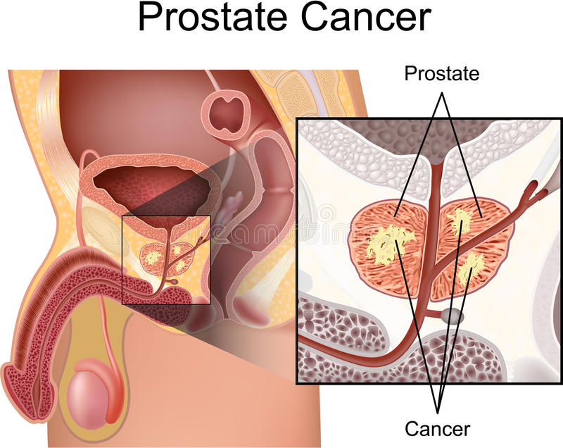 cancerprostata vektor illustrationer