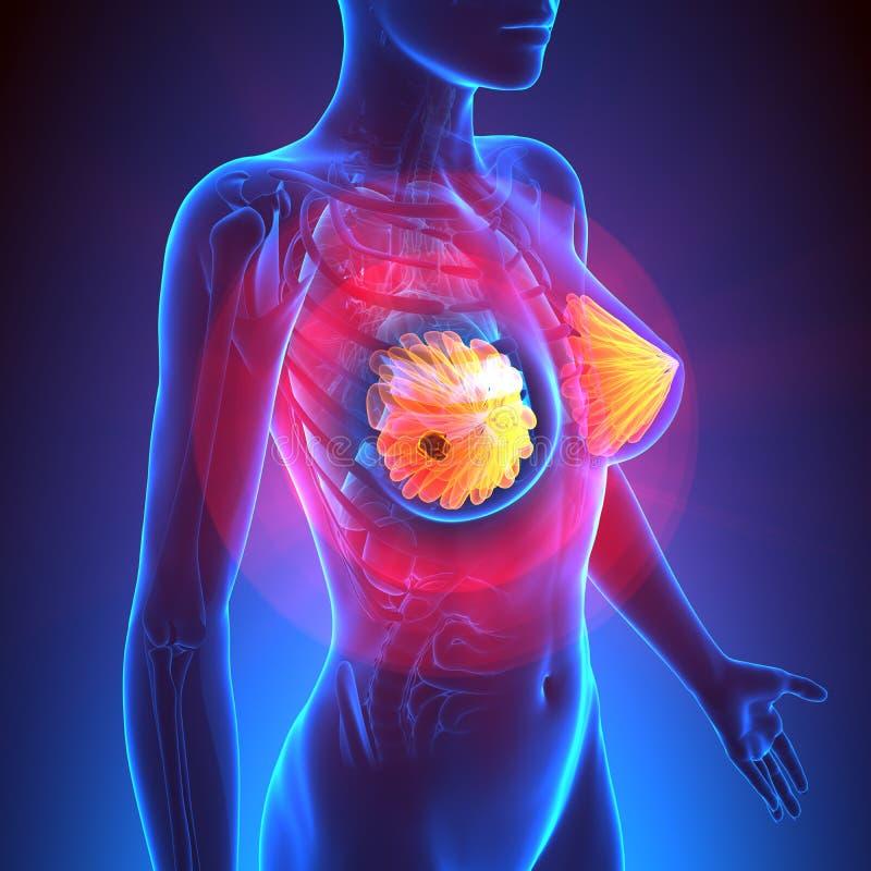 Cancro al seno - anatomia femminile - punto culminante del tumore royalty illustrazione gratis