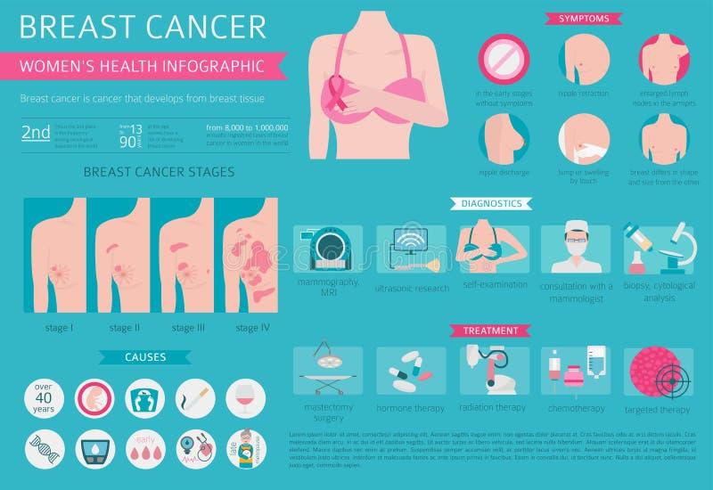 Cancro al seno, infographic medico Sistemi diagnostici, sintomi, ossequio illustrazione vettoriale