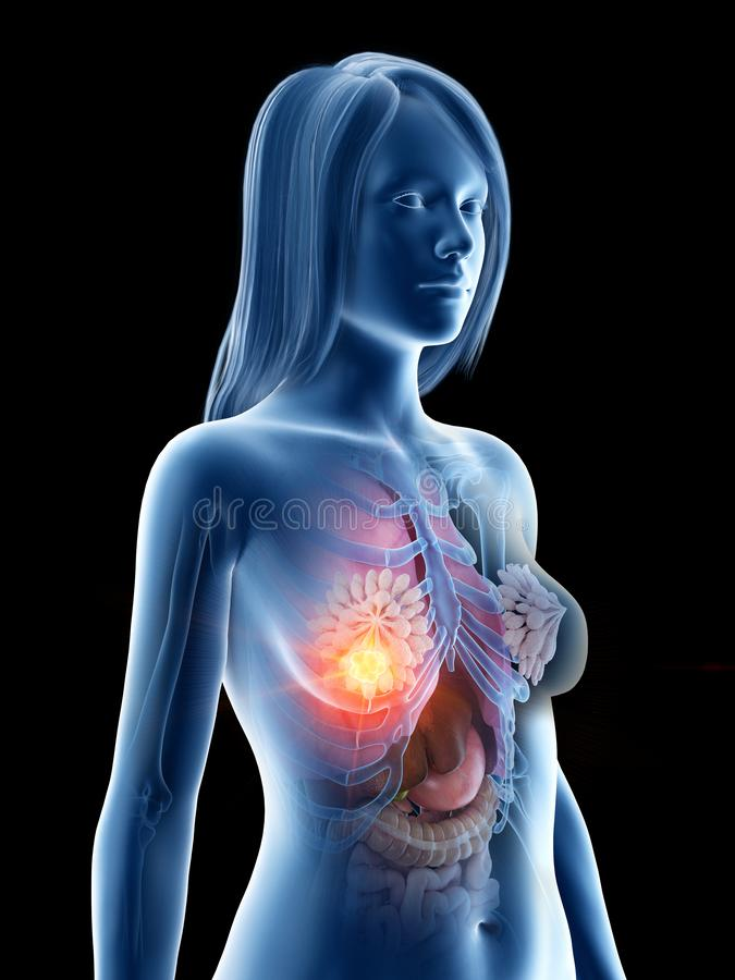 Cancro da mama ilustração stock