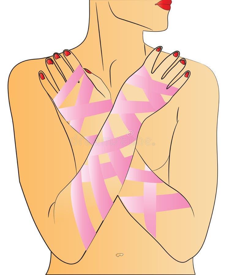 Cancro da mama - menina ilustração stock