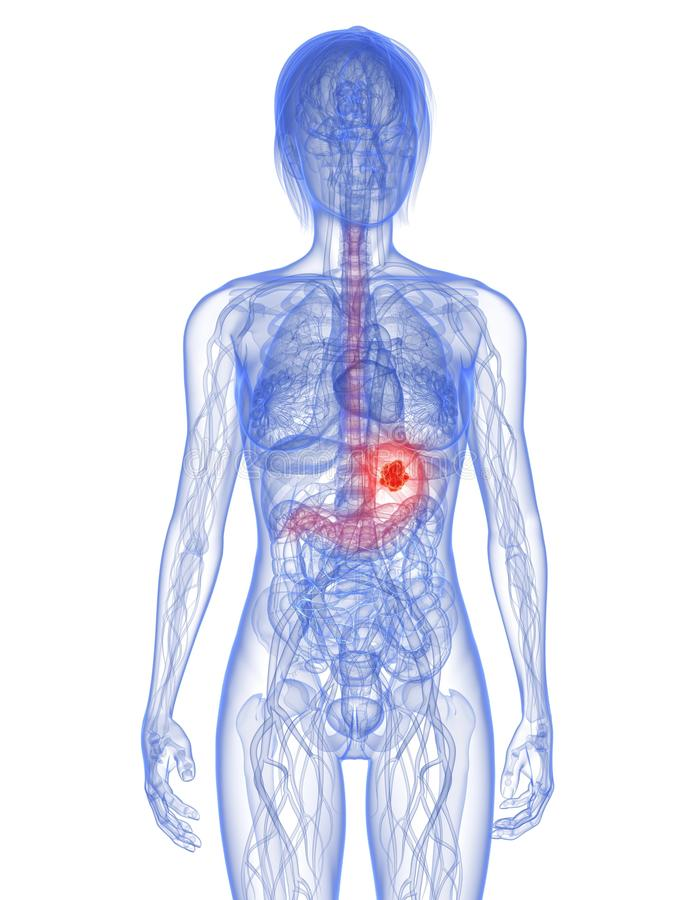Cancro de estômago ilustração royalty free
