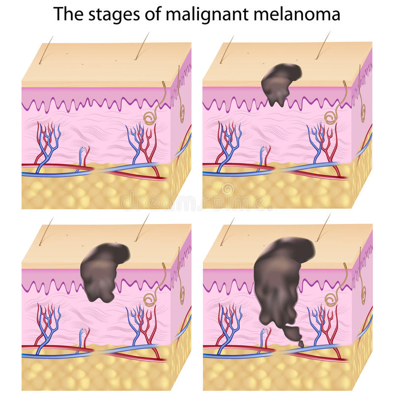Cancro de pele ilustração royalty free