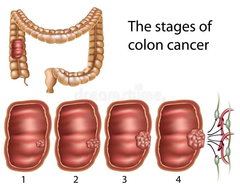 Cancro do cólon, eps8 ilustração do vetor