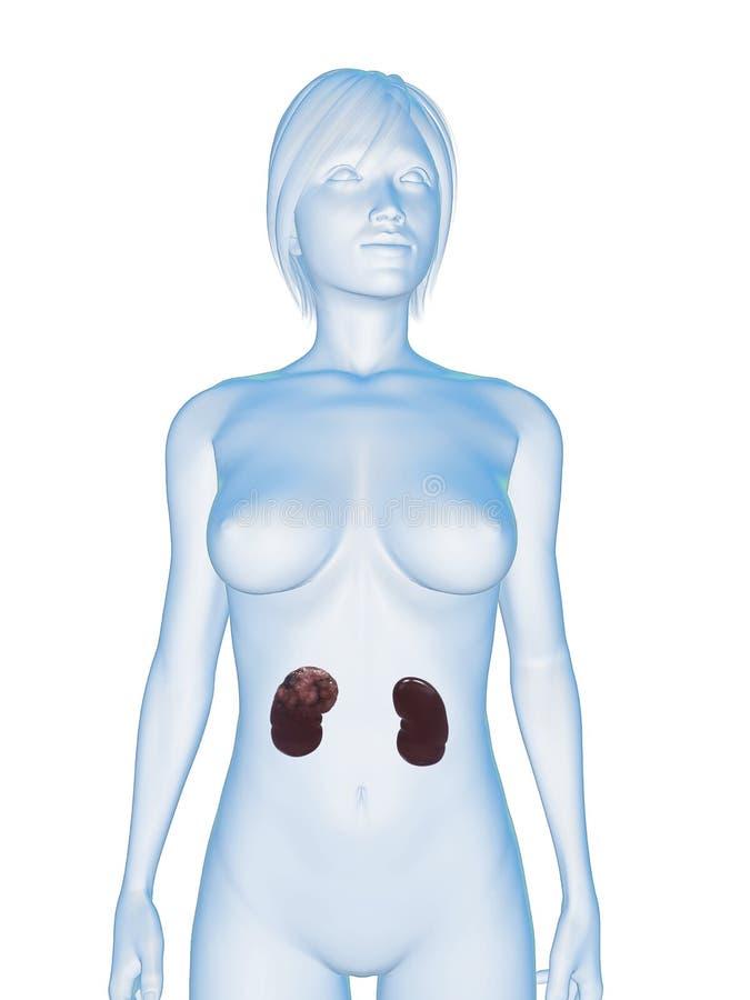 Cancro do rim ilustração stock
