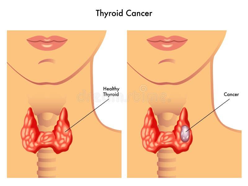 Cancro do tiróide ilustração royalty free