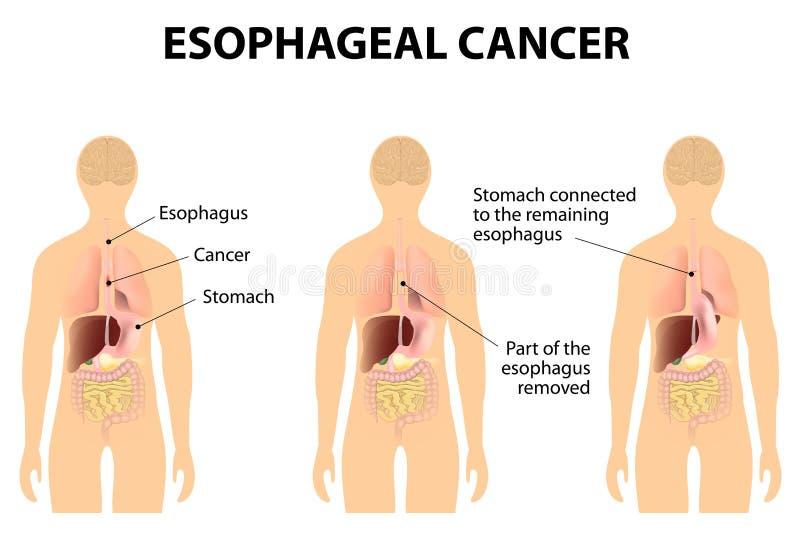 Cancro esofágico ilustração stock