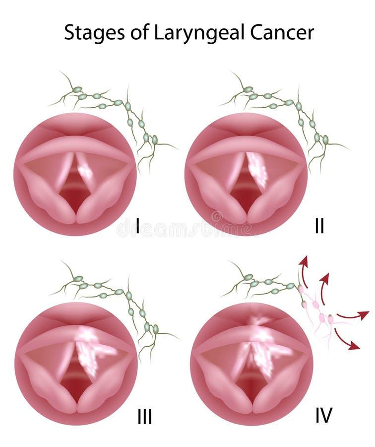 Cancro laríngeo ilustração stock