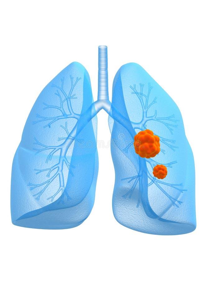 Cancro polmonare royalty illustrazione gratis
