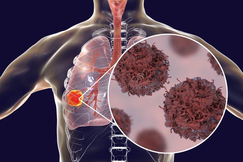 Cancro polmonare, illustrazione illustrazione vettoriale