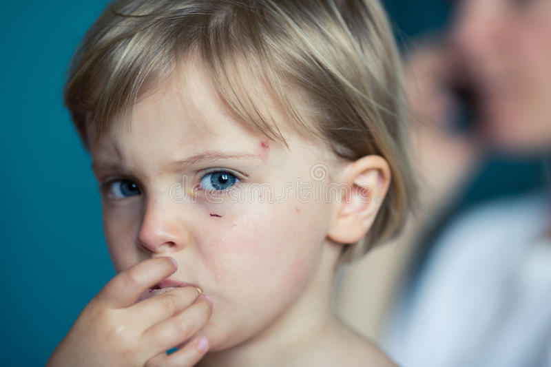 Candid serious thinking or sad young baby caucasian blonde girl with small scratch portrait at home stock photos