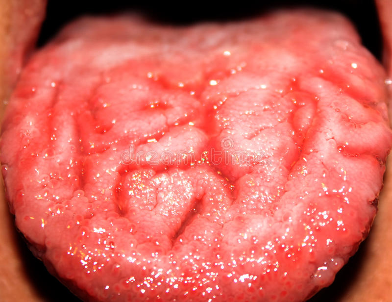 Candidiasis en la lengua Capa blanca Lengua fracturada tordo fotografía de archivo libre de regalías