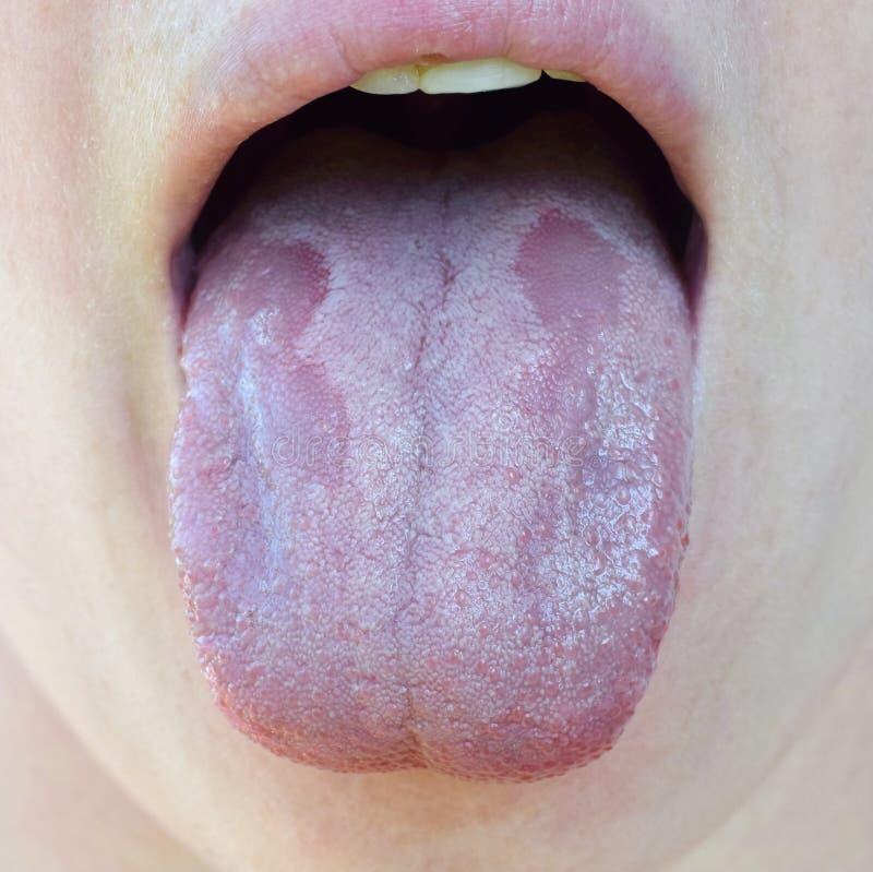 Candidiasis oral o albicans orales de la candida del trush, candidiasis en el cierre humano de la lengua para arriba, efecto secu fotos de archivo libres de regalías