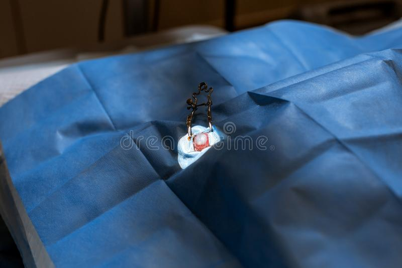 Cane di aiuto della copertura del chirurgo del veterinario con l'occhio danneggiato dalla copertura sterile preparazione controll immagini stock libere da diritti