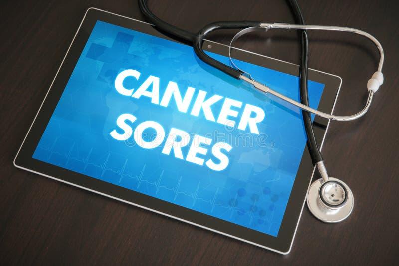 Canker o conceito médico do diagnóstico dos sores (doença cutâneo) em Ta foto de stock royalty free