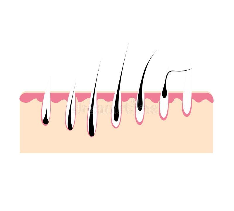 Capelli di perdita, problema dei capelli di crescita, capelli di salute Fase di crescita dei capelli illustrazione vettoriale
