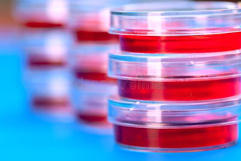 Capsula di Petri di plastica con liquido rosso, lo studio di colesterolo dentro immagini stock
