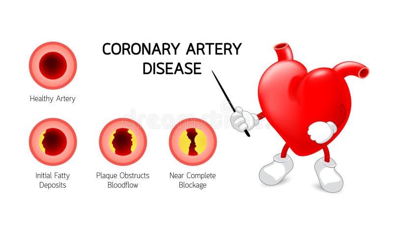 Carácter del corazón con el gráfico de la información de la enfermedad de la arteria coronaria libre illustration