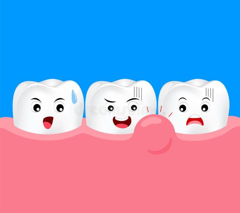 Caráter bonito do dente dos desenhos animados com problema da goma ilustração do vetor
