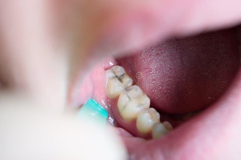 Caraïbische laesies op kauwtanden, tandbederf, esthetisch defect stock fotografie