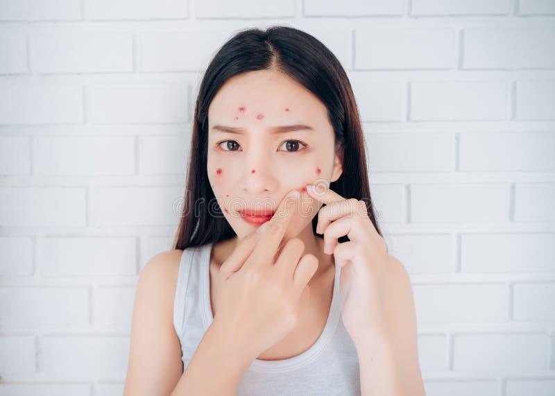 Cara asiática joven del problema de las mejillas del acné del apretón de la mujer imagen de archivo