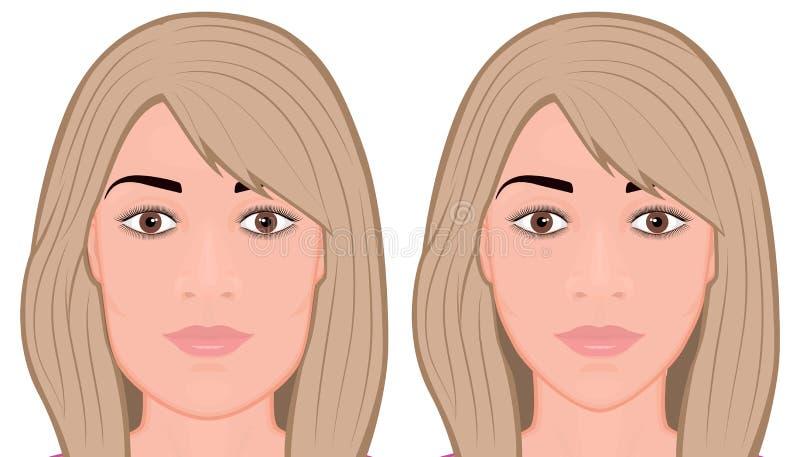Cara da cirurgia da redução do front_Jaw da cara ilustração stock