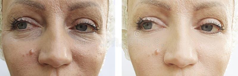 a cara da mulher enruga a diferença antes e depois da correção fotos de stock