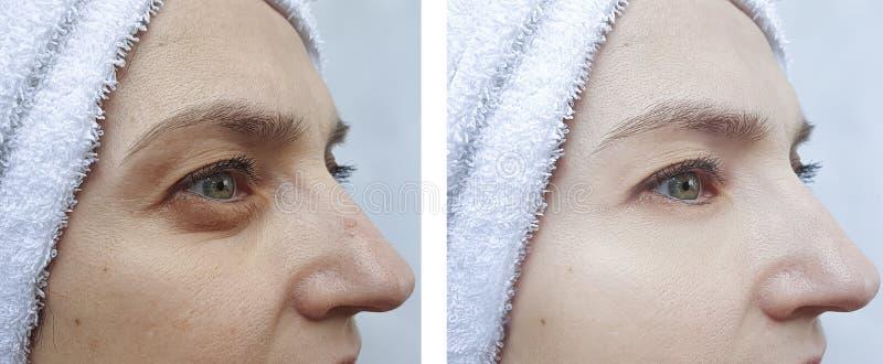 A cara da mulher enruga a diferença antes e depois da correção da tensão fotos de stock